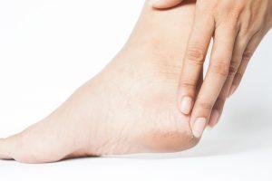 Cracked heels dry skin